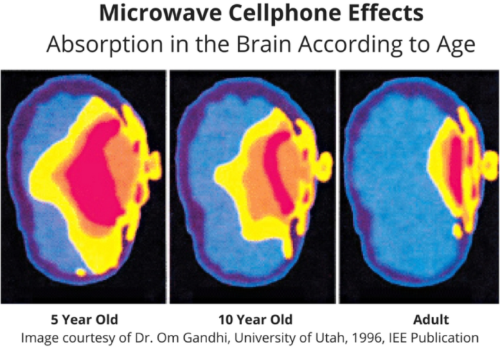 emf-effects-children-brain